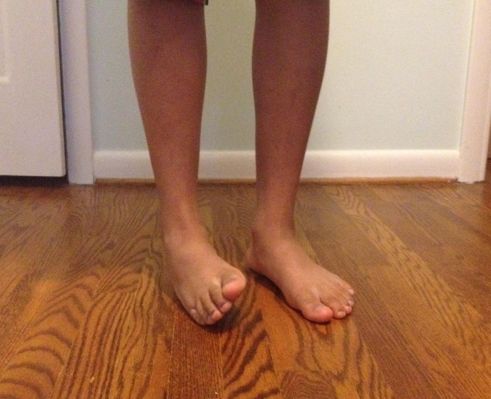 lateral sprain